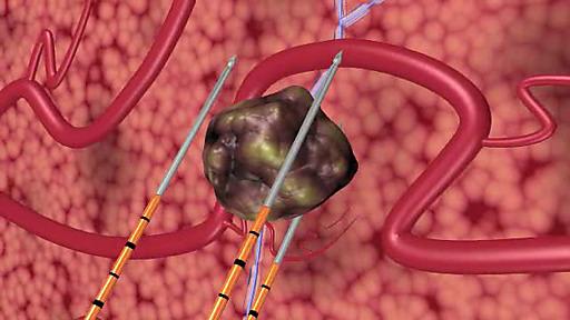 Heidelberger Klinik für Prostata-Therapie nutzt erstmals die Irreversible Elektroporation zur schonenden Behandlung von Prostata-Krebs. Das Schema zeigt die Einführung von drei IRE-Elektroden, die rings um den Prostata-Tumor angeordnet sind; mit kurzen Spannungsstößen werden die Tumorzellen im Rahmen der Irreversiblen Elektroporation abgetötet.
