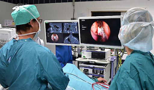 Mikrochirurgischer Eingriff mit dem neuen 3D-Navigationsgerät in der Privatklinik Döbling. Hier wird gerade eine Nasennebenhöhle saniert.