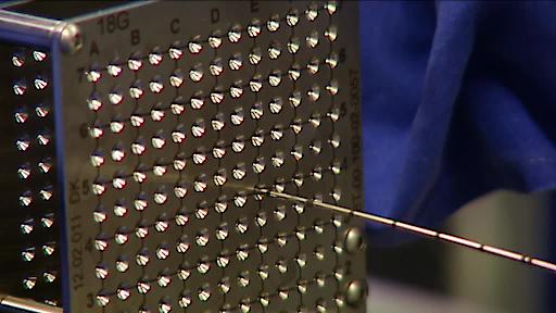 """Biopsienadeln werden über eine Art Metallschablone mit einem Koordinatensystem (""""Template"""") millimetergenau in die Prostata eingeführt werden. Dank MRT- und Ultraschallaufnahme werden krebsverdächtige Bereiche gezielt erfasst. Weiterer Text über ots und www.presseportal.de/nr/57328 / Die Verwendung dieses Bildes ist für redaktionelle Zwecke honorarfrei. Veröffentlichung bitte unter Quellenangabe: """"obs/Klinik für Prostata-Therapie Heidelberg/Klinik f.Prostata-Th./M. Boeckh"""""""