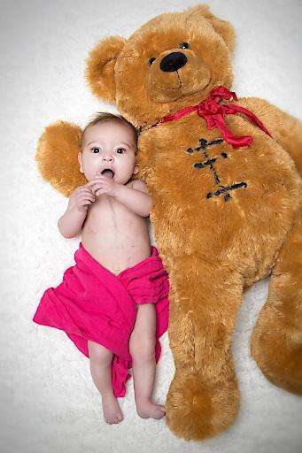 Dieses Baby musste bereits am offenen Herzen operiert werden.
